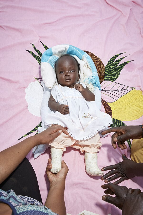 A baby is treated using the Ponseti method, which involves stretches and casts to correct her feet
