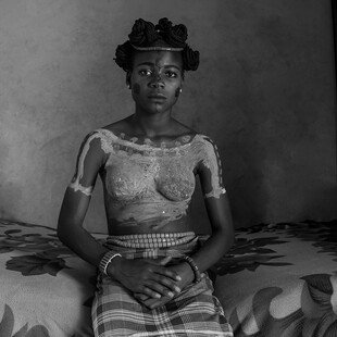 A teenage girl sits in her healing room, having recently been circumcised