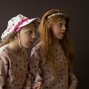 Two sisters who have a disease too rare to have yet been identified by doctors