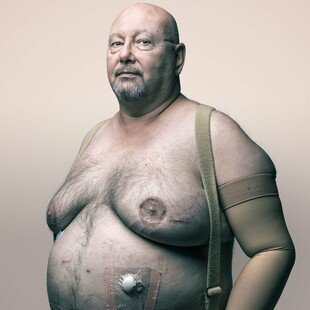 Portrait of a man who is in remission from breast cancer