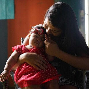 A mother cradles her daughter, who was born with congenital Zika syndrome.