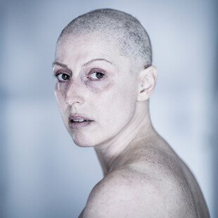 Portrait of a woman with breast cancer, who has lost her hair due to chemotherapy.