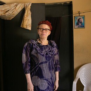 Victoria, a Nigerian woman with albinism, stands for a portrait.