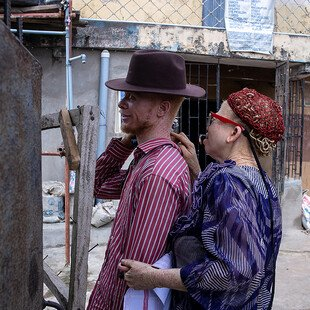 A man and a woman, both with albinism, greet each other.
