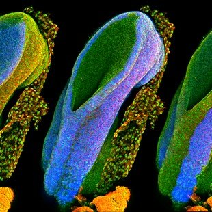One of the winning images for the 2017 Wellcome Image Awards. A confocal micrograph of a developing spinal cord by Gabriel Galea, University College London.