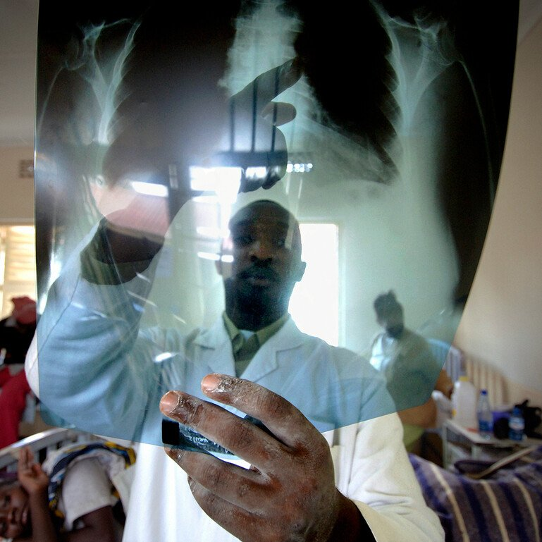 A doctor examines the x-ray of the chest of a patient with TB